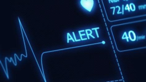 SQL Server Alert